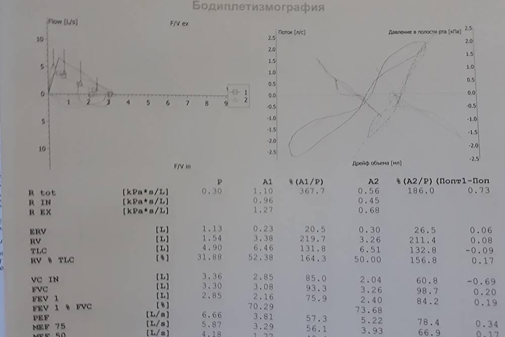 Так выглядит протокол бодиплетизмографии