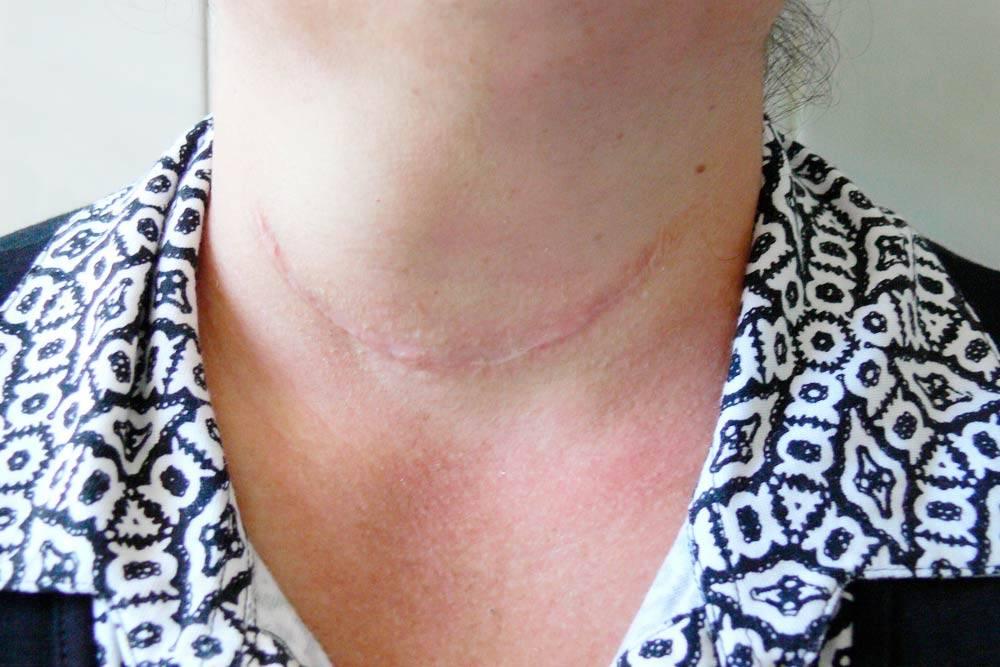 Так выглядит рубец после классической операции с разрезом в области шеи