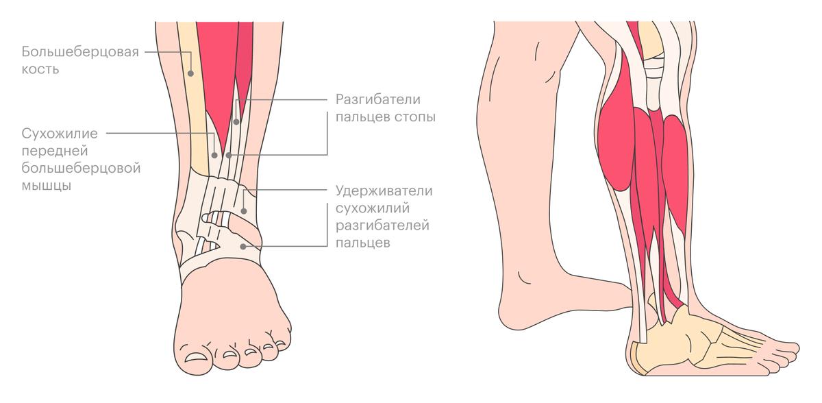 На рисунке показано сухожилие передней большеберцовой мышцы, которое мне пересадили на заднюю часть голени, фото шрамов покажу ниже
