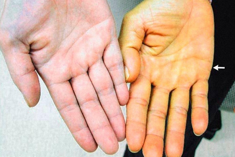Слева — ладонь обычного цвета. Справа — кожа окрасилась из-за бета-каротина. Источник: медицинский журнал NEJM