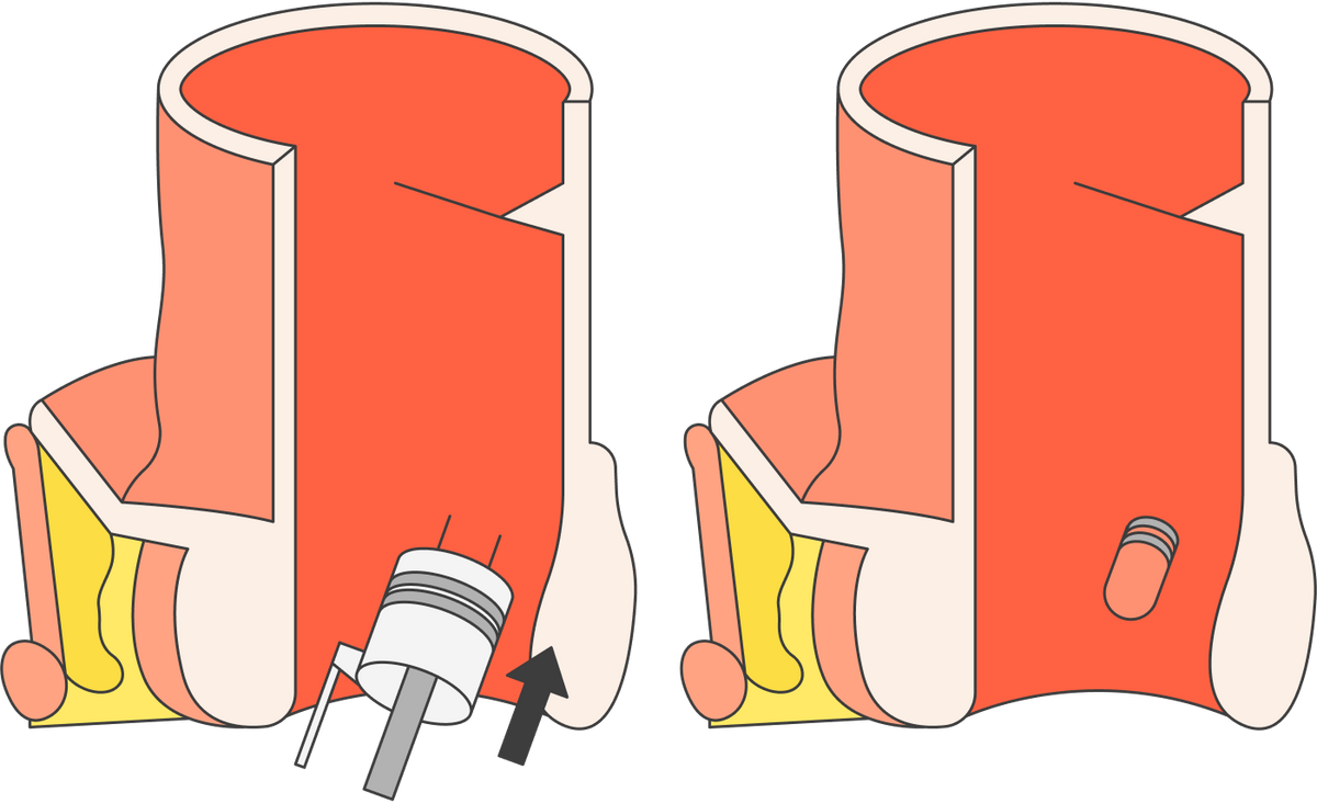 Прилигировании на геморроидальный узел надевают латексное колечко, чтобы пережать кровоток. После этого узел должен отвалиться сам