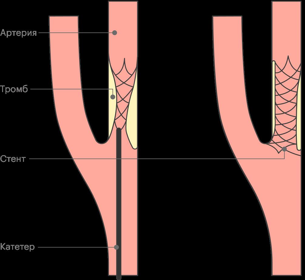 Пристентировании с помощью катетера к месту сужения артерии подводят стент, который восстанавливает и поддерживает просвет сосуда