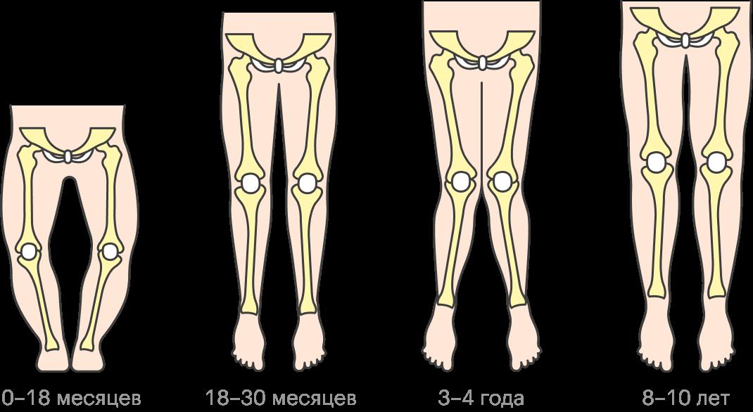 Обычно О-образная и Х-образная деформация ног — варианты возрастной нормы, и положение ног выправится само по себе