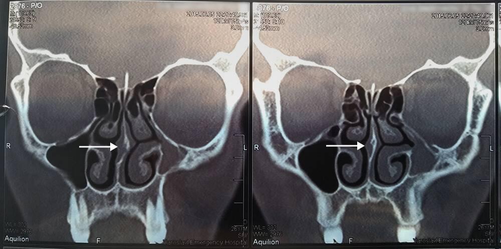 На компьютерной томографии отчетливо видно искривление носовой перегородки
