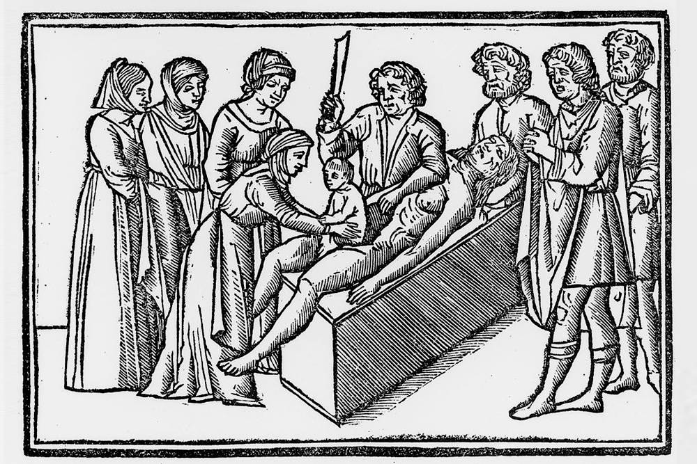 Это средневековая гравюра, на которой представлено кесарево сечение. Считается, что здесь изображено чутьли нерождение Гая Юлия Цезаря. Ноэто исторический миф: мать Цезаря осталась жива после родов. Источник: TheHistory Blog