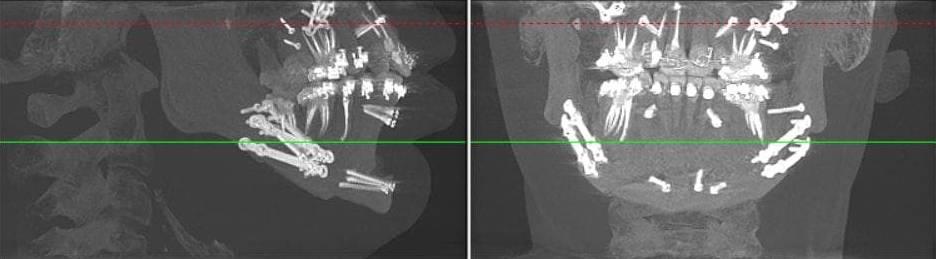 На четвертый день пребывания в клинике мне сделали КТ, чтобы хирург и ортодонт могли оценить результат. На снимке видно пластины и винты вокруг верхней и нижней челюстей