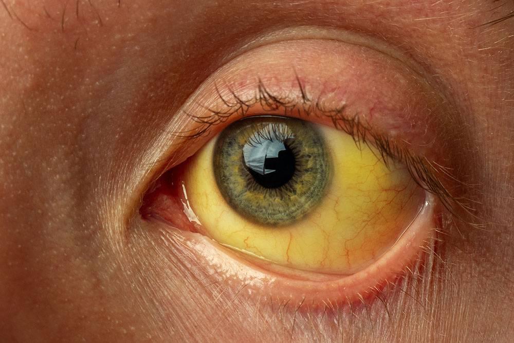 У некоторых людей пригепатитеА кожа и белки глаз становятся желтоватыми. Источник:daniiD/Shutterstock