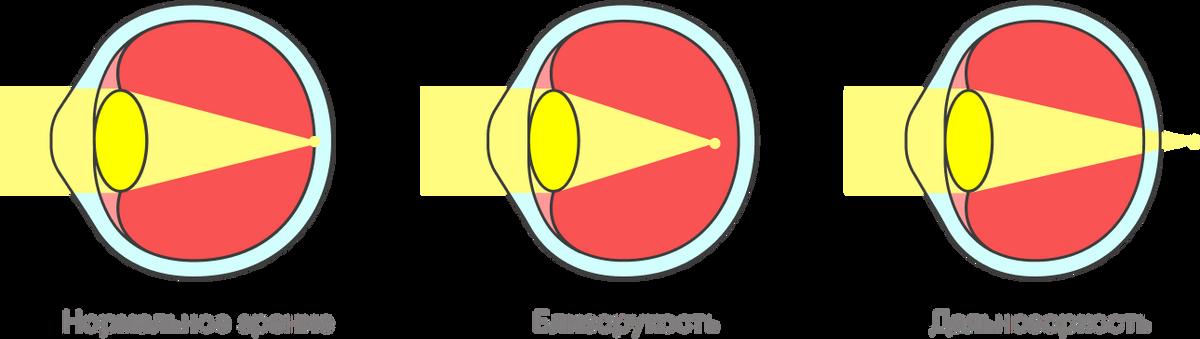 Из-за неправильной формы глазного яблока роговица фокусирует свет либо перед сетчаткой, либо за ней — и возникают проблемы со зрением