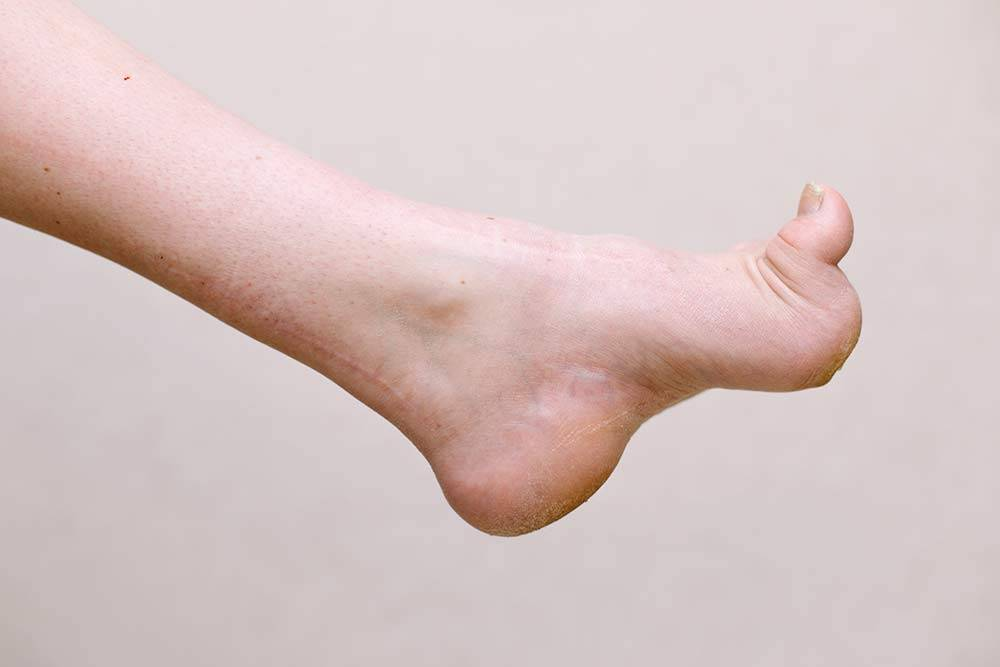 Так выглядит моя нога сейчас. Шрамы остались отпересадки сухожилия спереди назад