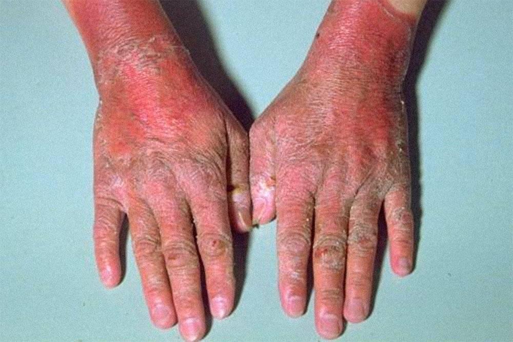 У людей с дефицитом витаминаВ3 часто развивается пеллагра, один из признаков которой — красные шелушащиеся руки. Источник: справочник дляврачей MSD