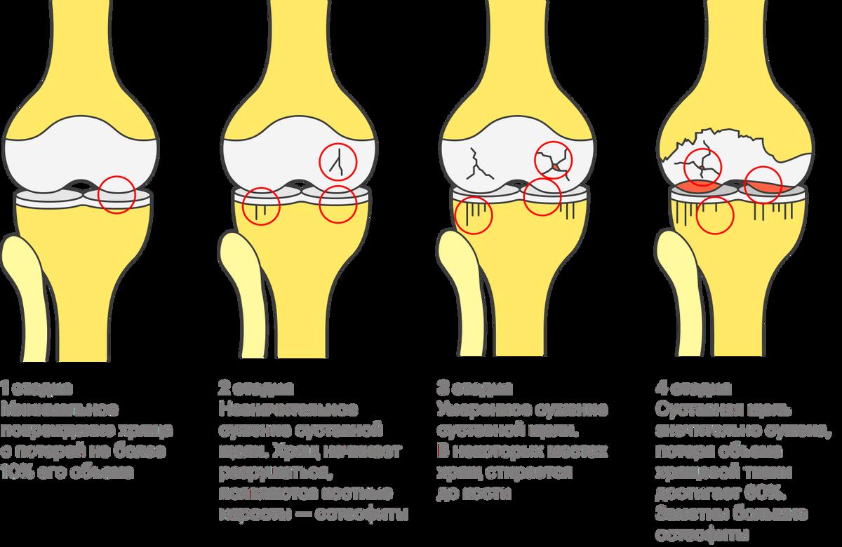 Стадии развития остеоартроза