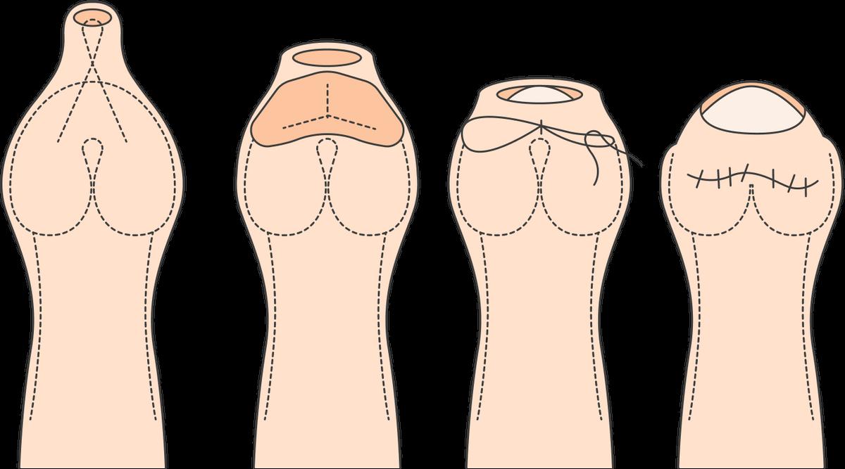 Один из вариантов препуциопластики — YV-пластика, прикоторой на нижнем конце крайней плоти делается Y-образный разрез, который затем ушивается. Таким образом увеличивается отверстие дляголовки пениса