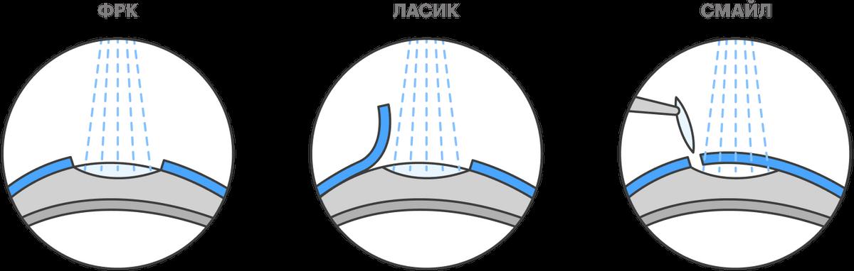 ФРК — когда удаляют часть поверхностных тканей роговицы глаза и потом обрабатывают ее лазером. «Ласик» — когда роговицу обрабатывают лазером подлоскутом изповерхностных тканей, азатем возвращают лоскут наместо. «Смайл» — когда фрагмент средней части роговицы удаляют через небольшой разрез