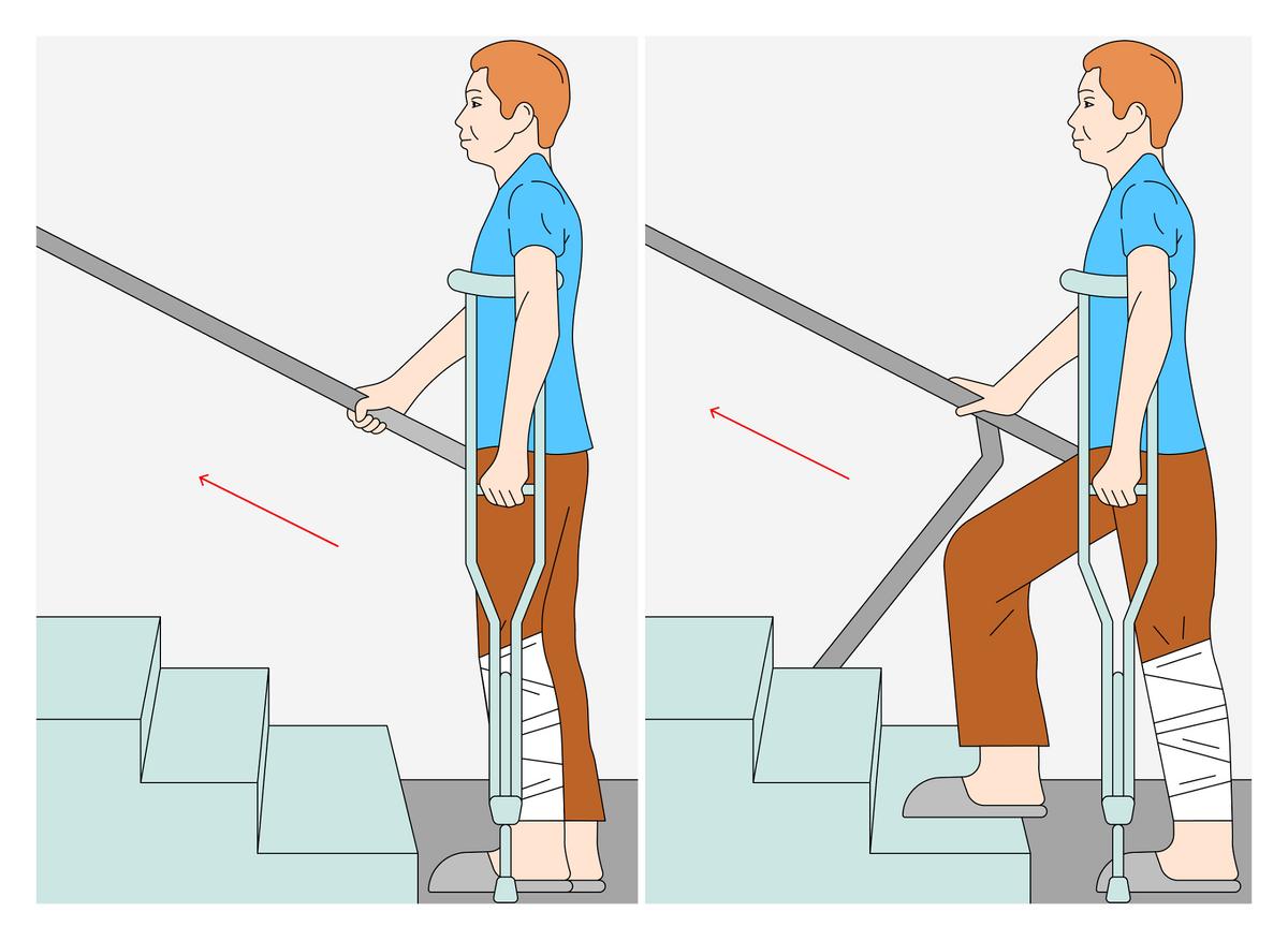 Даже на обычных костылях нужно учиться ходить. Чтобы подняться по лестнице с поручнями, надо взять оба костыля под одну руку, свободной рукой взяться за поручень, поставить на верхнюю ступеньку сначала здоровую ногу, затем костыли, а после подтянуть травмированную ногу