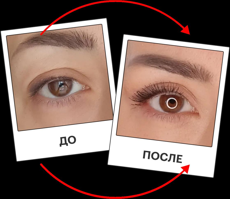 До и после: 5 примеров, как люди меняют внешность и сколько денег на это тратят