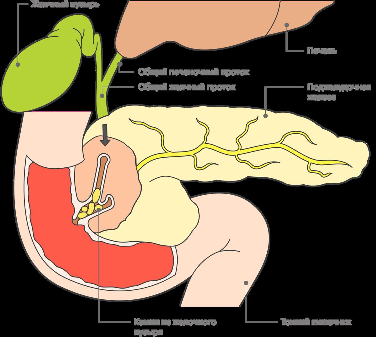 Когда камни из желчного пузыря спускаются по общему желчному протоку и закупоривают проток поджелудочной железы, развивается билиарный панкреатит