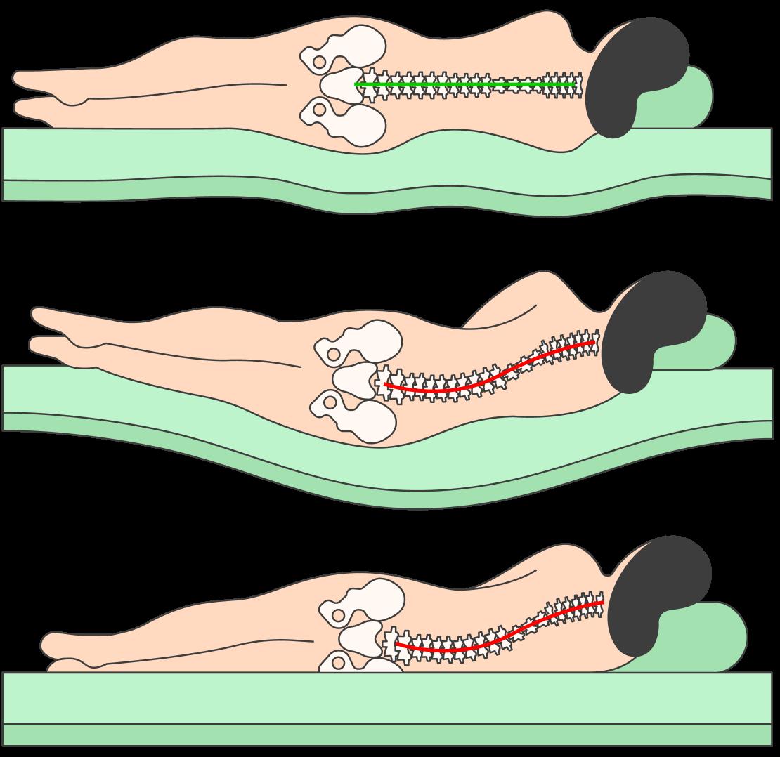 В положении лежа на боку позвоночник недолжен изгибаться. Его естественное положение вэтой проекции — прямая линия. Так мышцы спины максимально расслабляются. Намягком матрасе бедро погружается глубже, чем надо. На твердом, наоборот, плечо ибедро непогружаются вматрас. Так появляются перегибы, асними иболь поутрам