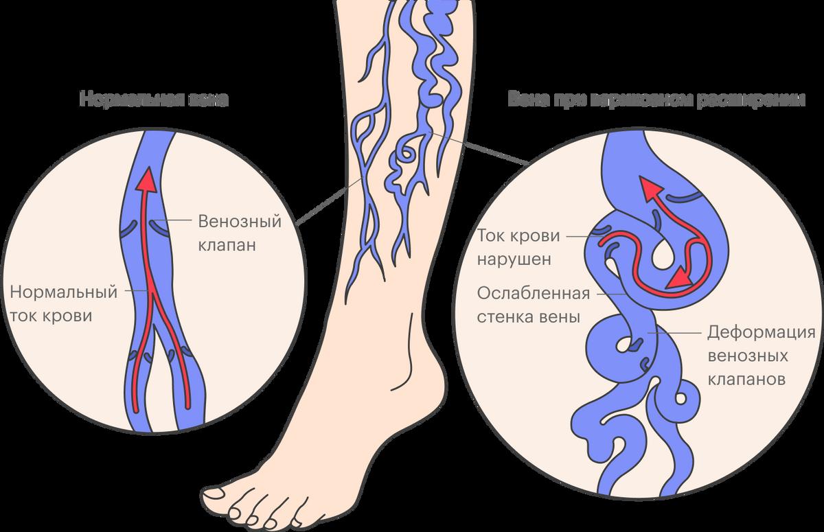 По одной из теорий варикозное расширение вен возникает из-за врожденной слабости венозной стенки. Поддавлением крови вена постепенно растягивается, современем деформируются венозные клапаны, поэтому появляются симптомы венозной недостаточности