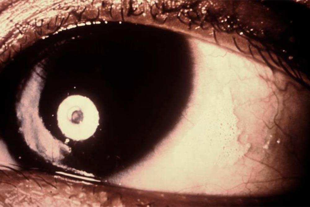 Ксерофтальмия. На роговице глаза справа видно ороговевшее пятно, которое образовалось из-за нехватки слез. Источник: справочник дляврачей MSD