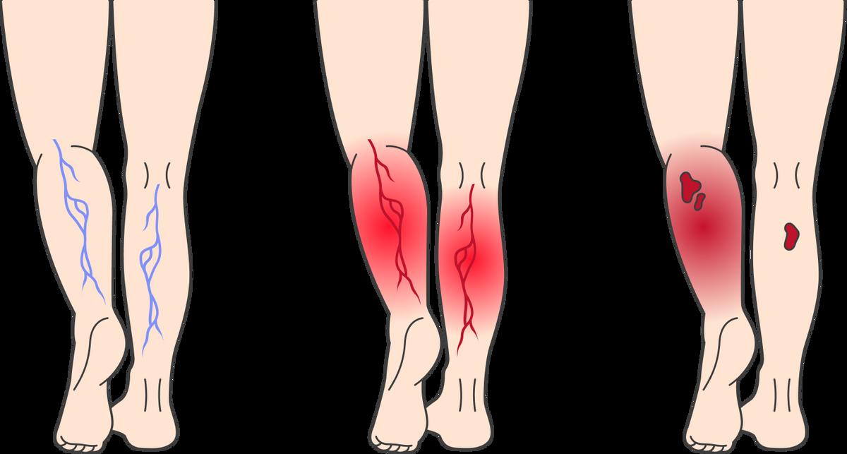 Варикозное расширение вен современем может привести кразвитию венозной недостаточности: она проявляется отеками иизменением цвета кожи. Позже из-за нарушения кровообращения могут появиться трофические язвы — незаживающие повреждения кожи