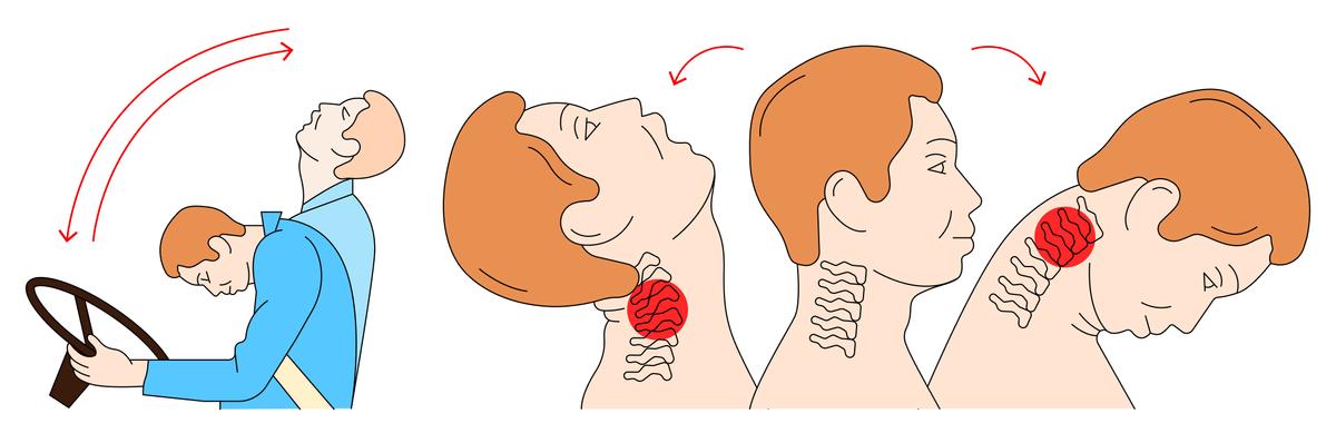 Хлыстовая травма шеи может произойти во время резкого торможения машины