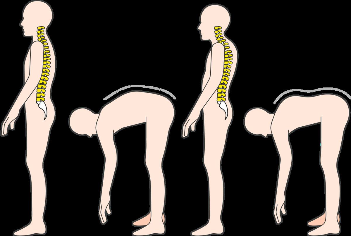 Грудной кифоз тоже видно по искривлению спины стоя и в наклоне
