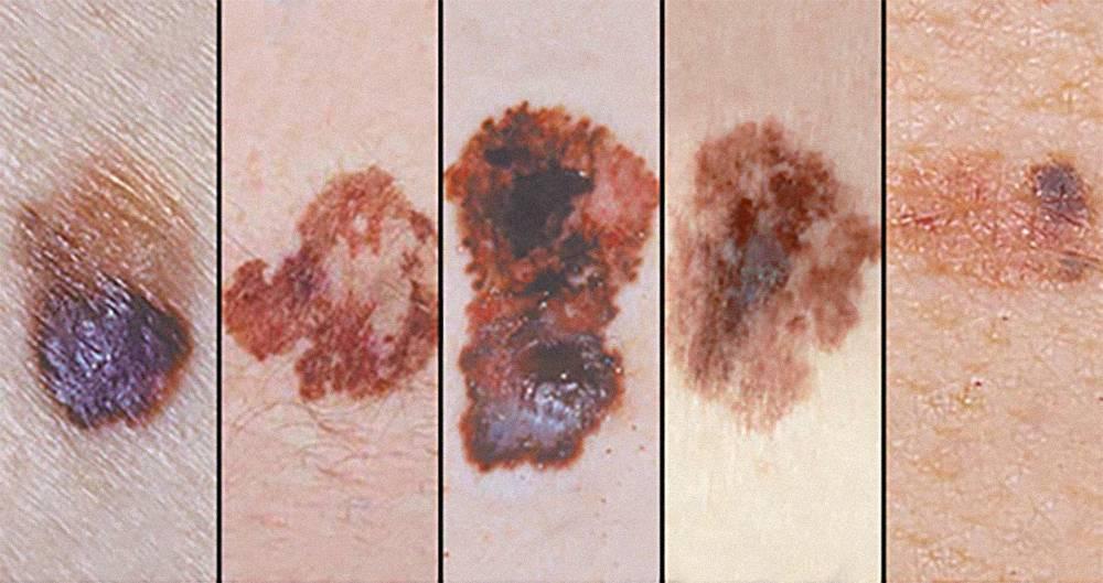 Основные признаки меланомы: асимметричность родинки, неровные границы, неравномерная пигментация, диаметр более 6 мм, а также любые замеченные изменения. Источник: Клиника Майо