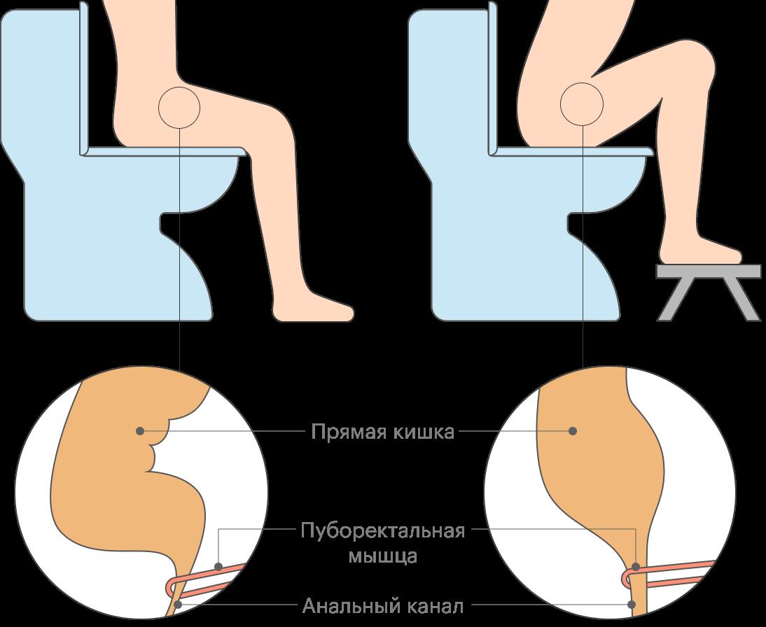 В положении с приподнятыми к груди коленями изменяется расположение прямой кишки, что облегчает процесс ее опорожнения в случае проблем