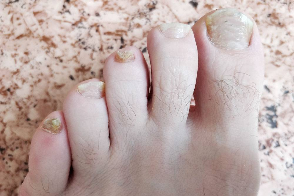 Так выглядели мои ногти 18 мая 2018 года — до начала лечения у врача. Сделал эти фото специально, чтобы потом отслеживать прогресс