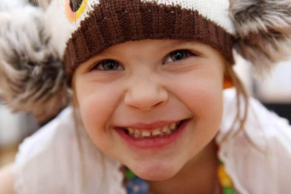 Это моя дочка. Нафото видно темное пятно навтором верхнем зубе — бутылочный кариес