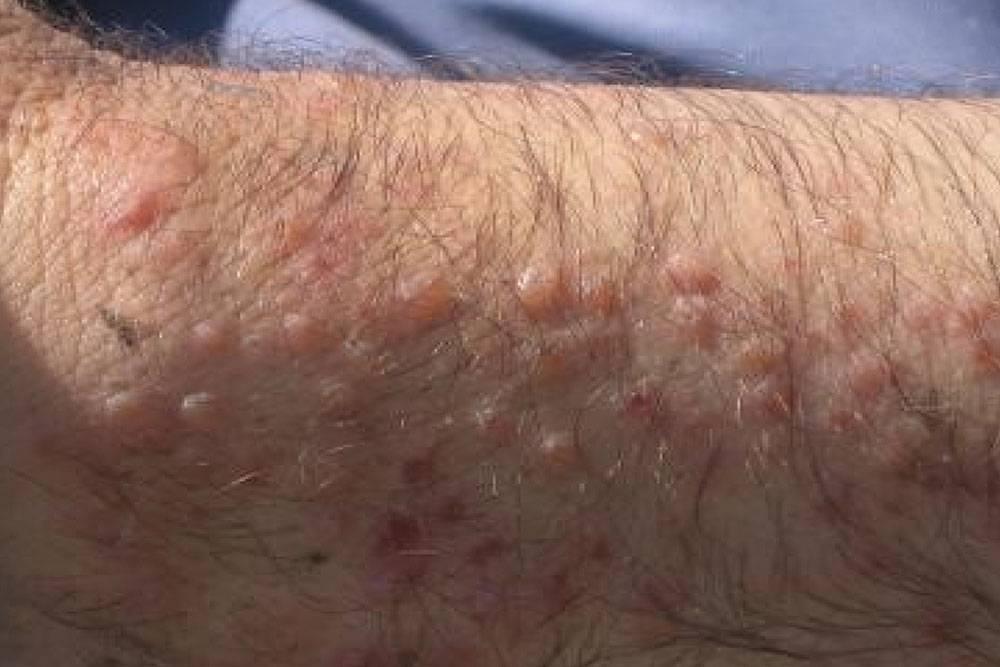 Так выглядит сыпь, связанная с церкариальным дерматитом. Источник: sciencedirect.com