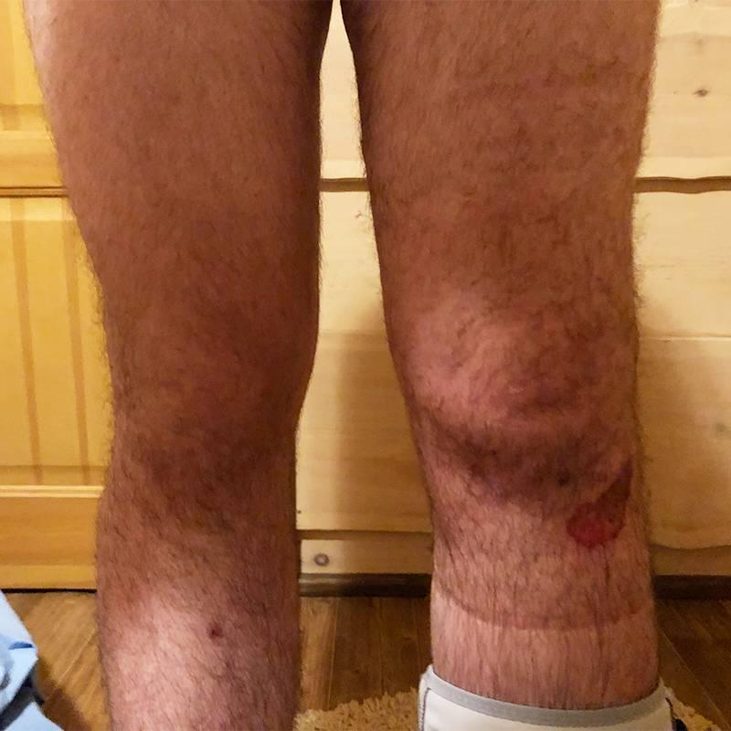 Вот так травмированное колено выглядело сразу после травмы