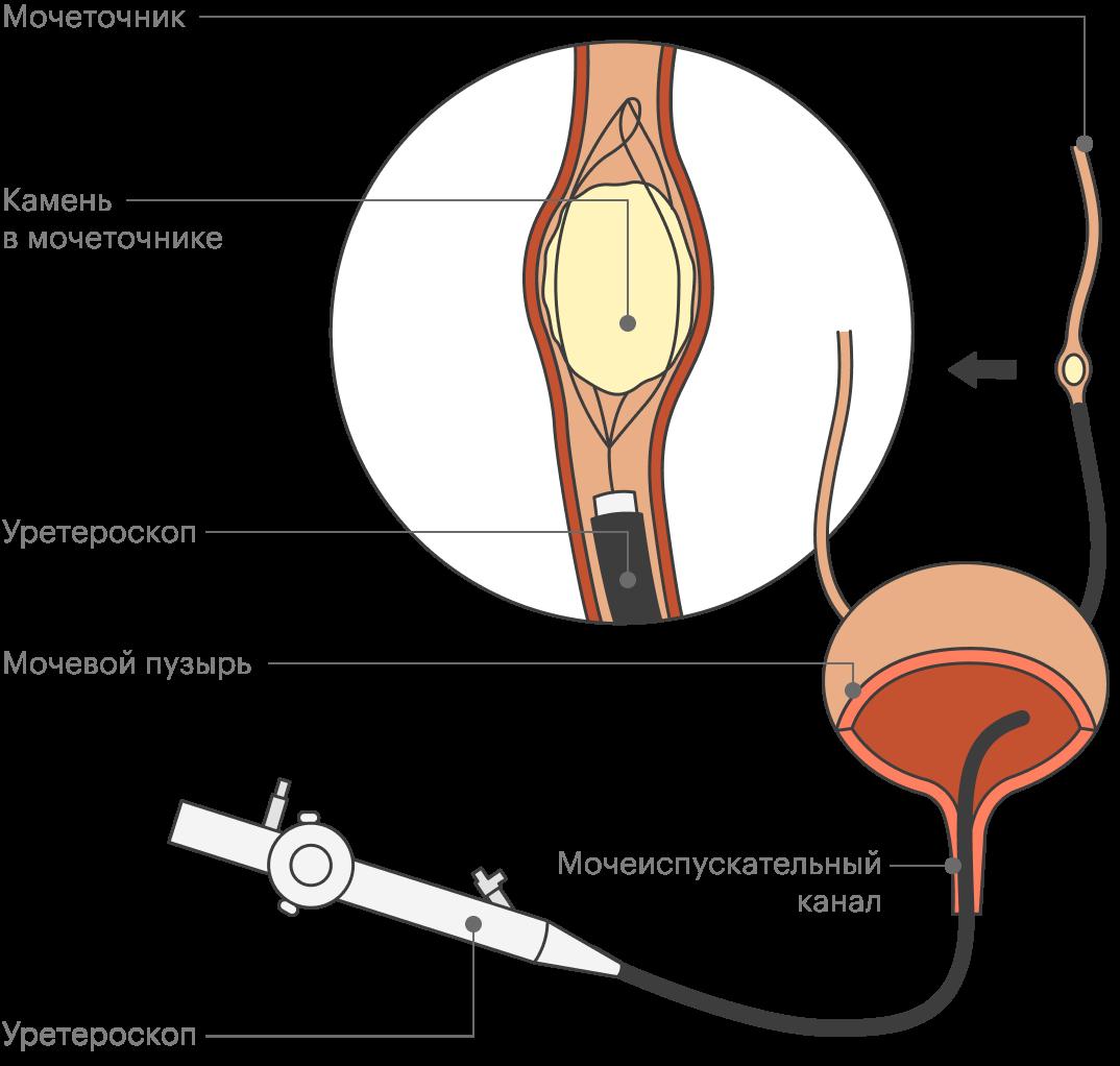 Приуретероскопии камень удаляют или разрушают с помощью эндоскопического прибора, который вводят через мочеиспускательный канал