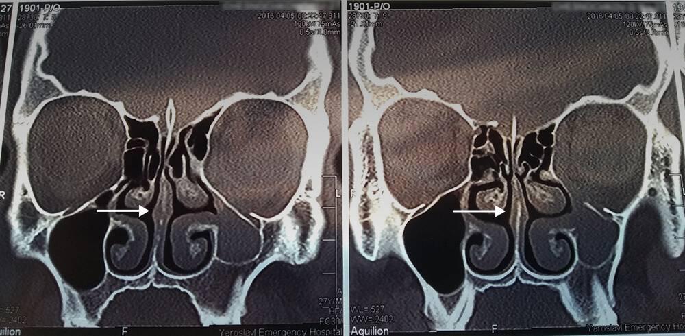 Компьютерная томография через шесть споловиной месяцев после операции. Носовая перегородка практически прямая, носовые проходы одинаковой ширины. Новнимательные читатели и эксперты Т—Ж заметили, что наснимках видны признаки синдрома молчащего синуса — достаточно редкого состояния, которое могло стать причиной двоения вглазах. Автор статьи обратится кврачу ипроконсультируется поповоду дальнейшего хирургического лечения