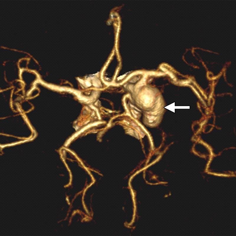 Аневризма сосудов головного мозга натрехмерном изображении при КТ-ангиографии. Выглядит устрашающе, но риск столкнуться сэтим заболеванием очень низок. Источник: pubs.rsna.org