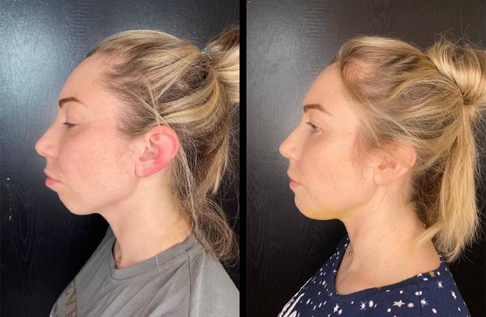 Пример того, как могут меняться пропорции лица. На первой фотографии пациентка до операции, на второй — через пять дней после. Источник: «Инстаграм»
