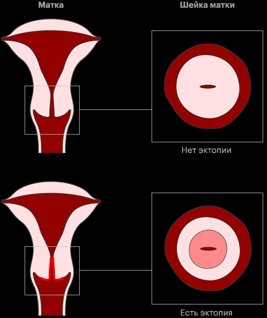 Эктопия шейки матки — нормальное состояние, которое обычно не надо лечить