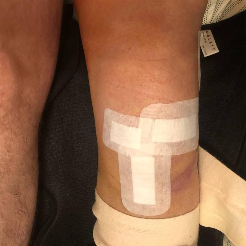 Вот так колено выглядело после операции, когда сняли дренаж