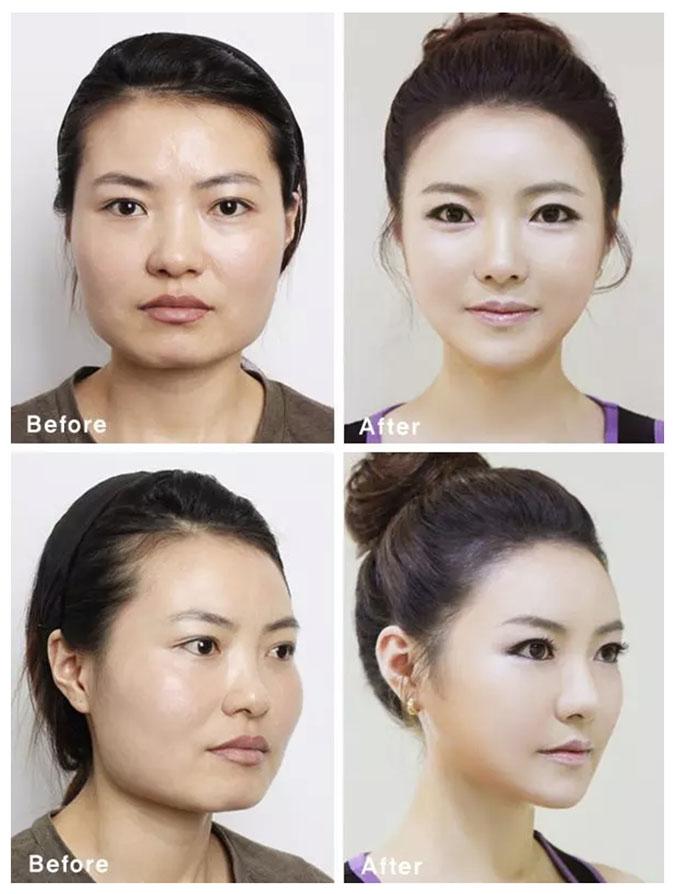 Примерно так меняются многие кореянки в течение жизни. Источник: medicaldaily.com