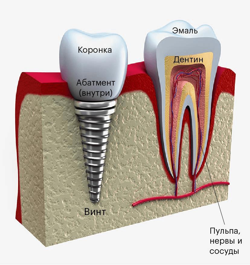 Имплантат похож на схематичный зуб. Главное отличие — внутри коронки нет кровеносных сосудов и нервов, а вместо живого корня — металлический винт