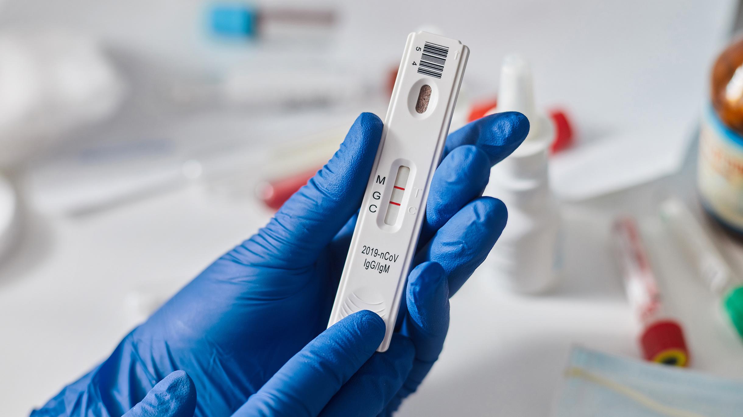 Как сдать анализы на коронавирусную инфекцию