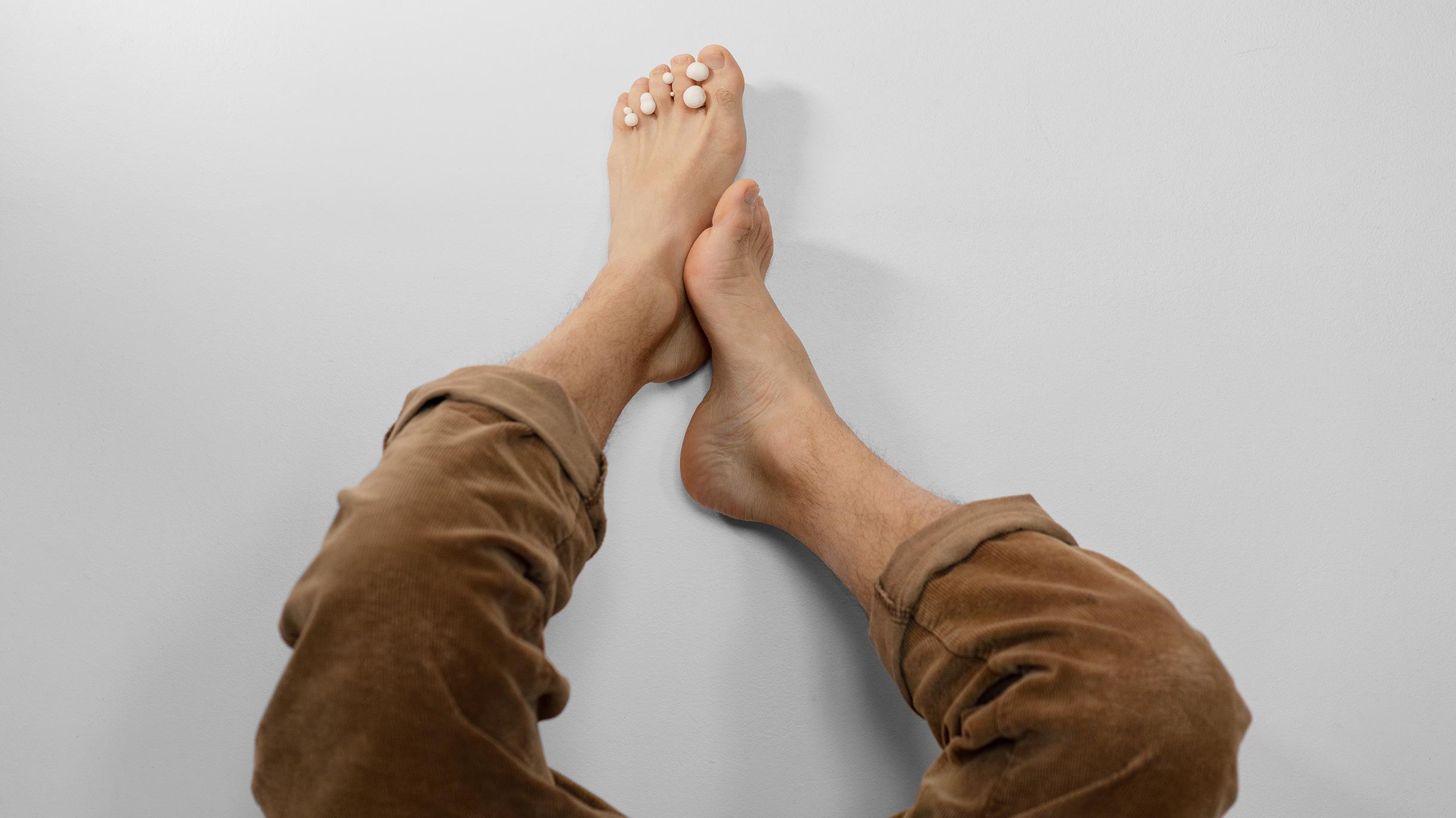 Как вылечить грибок ногтей и сколько это стоит