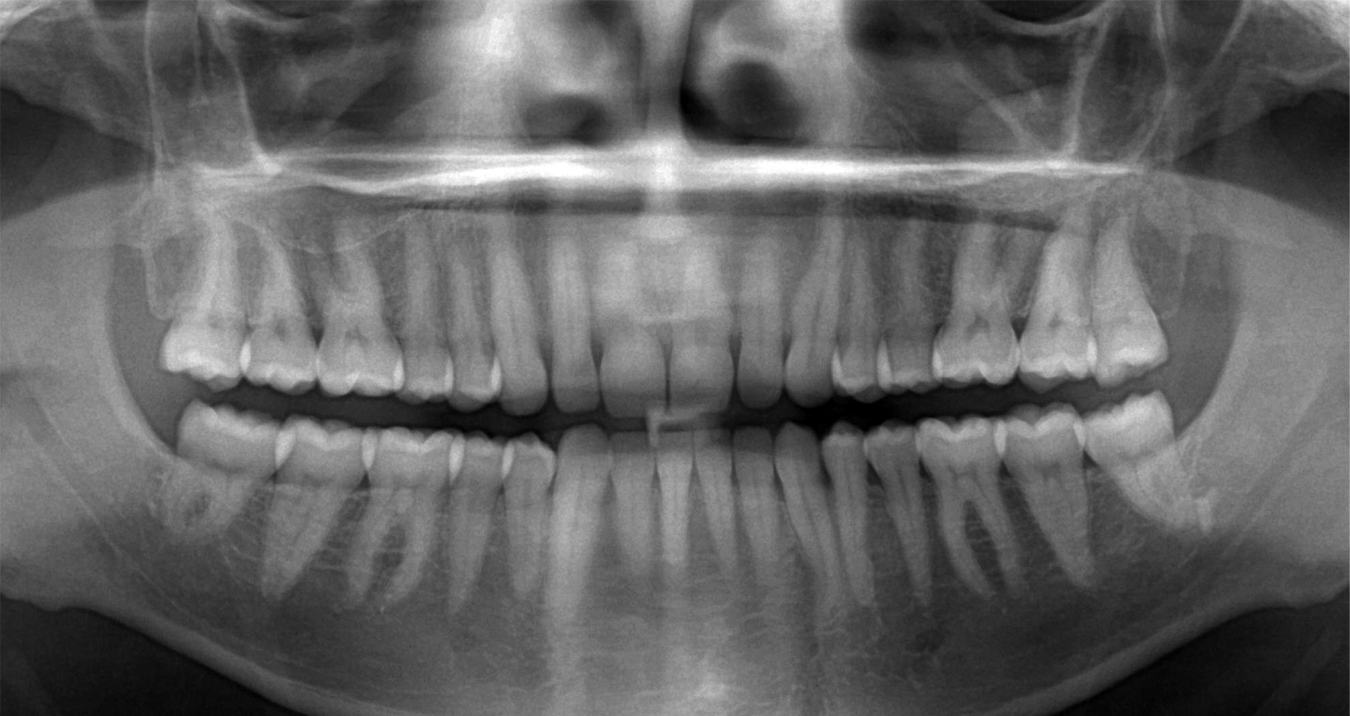 Панорамный снимок зубов. Источник: medstar32.ru