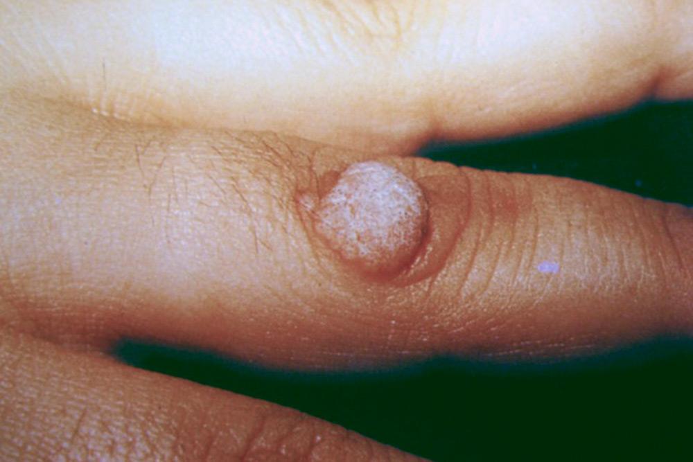 Бородавка на пальце — плотное, зернистое образование. Источник: справочникMSD
