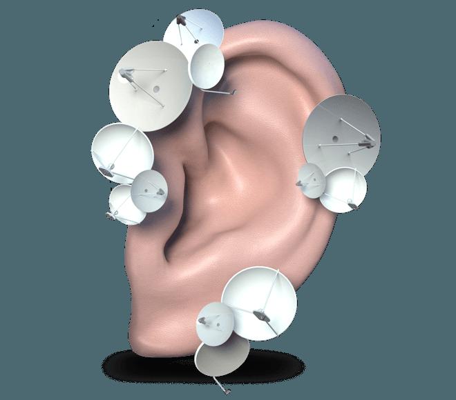 Как получить компенсацию за слуховой аппарат