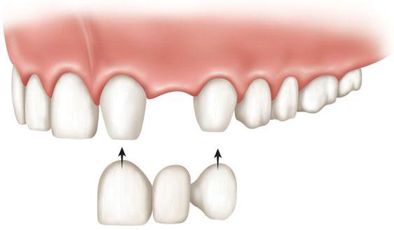 Мост держится на соседних зубах, поэтому дырка в кости для протеза не нужна. Но для моста нужно «обтачивать» соседние, здоровые зубы. Цены на мосты начинаются от 18 000 рублей