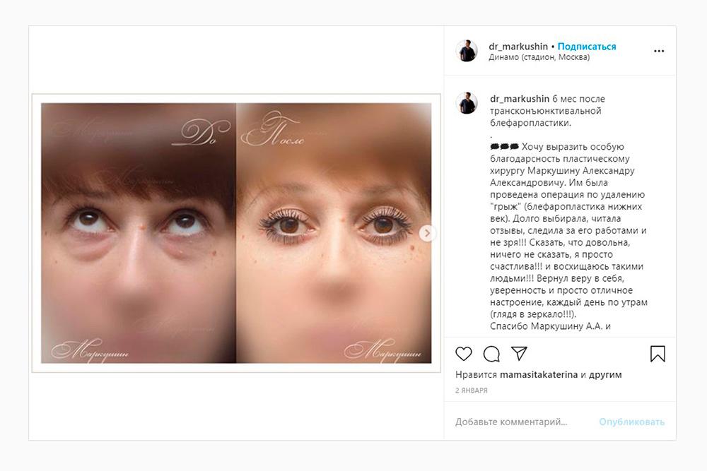 Пример блефаропластики нижних век. Хирург удалял жировые мешки под глазами. Источник:dr_markushin / Instagram